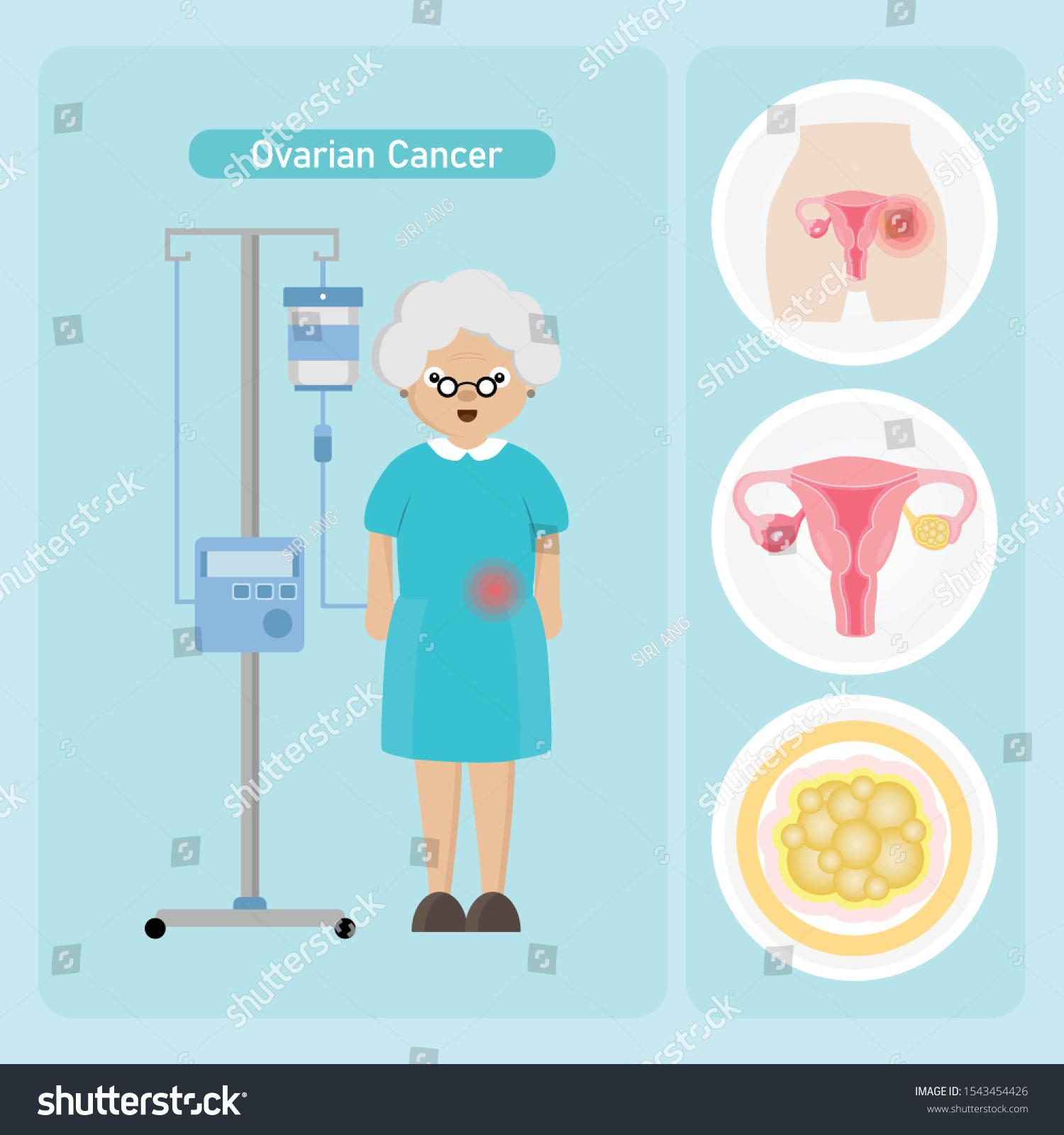 Senior Woman Patient Ovarian Cancer Cartoon Stock Vector Royalty Free 1543454426