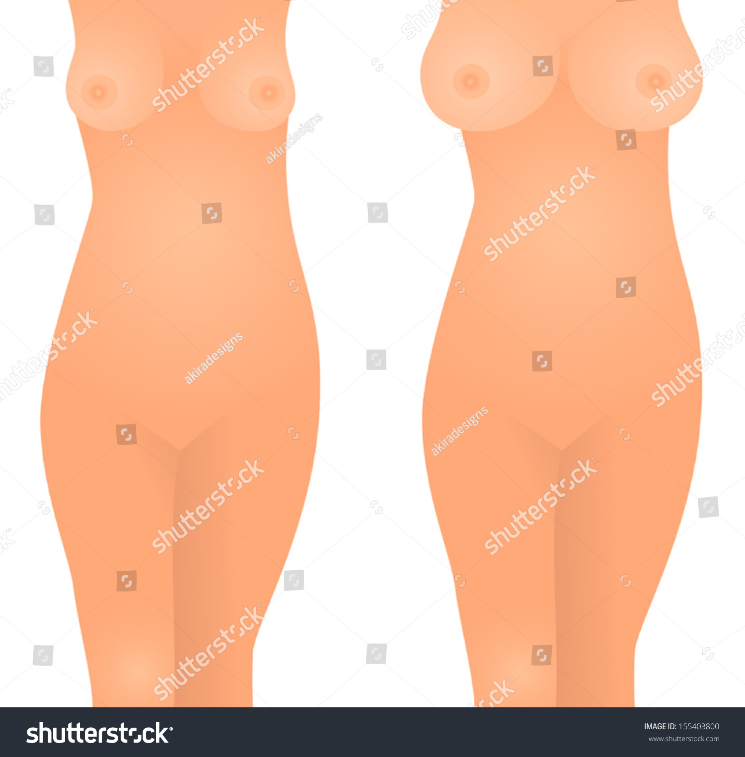 Vector illustration of woman before and after getting breast implants  plastic surgery, small and large