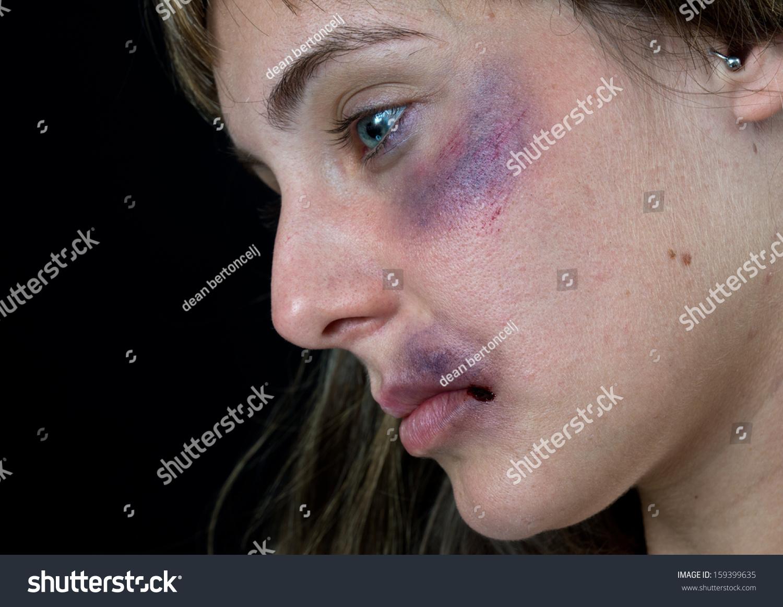 Rihanna S Facial Bruises 75