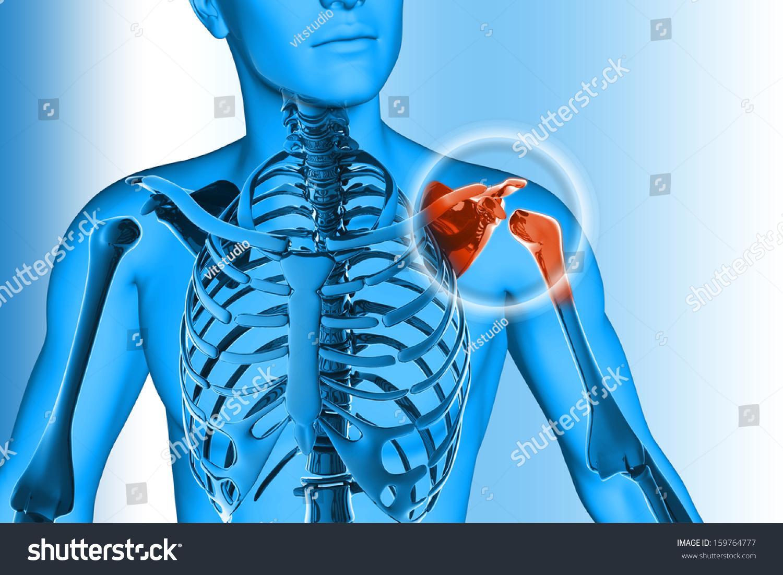 Shoulder Pain Hurt Trauma Stock Illustration 159764777 - Shutterstock