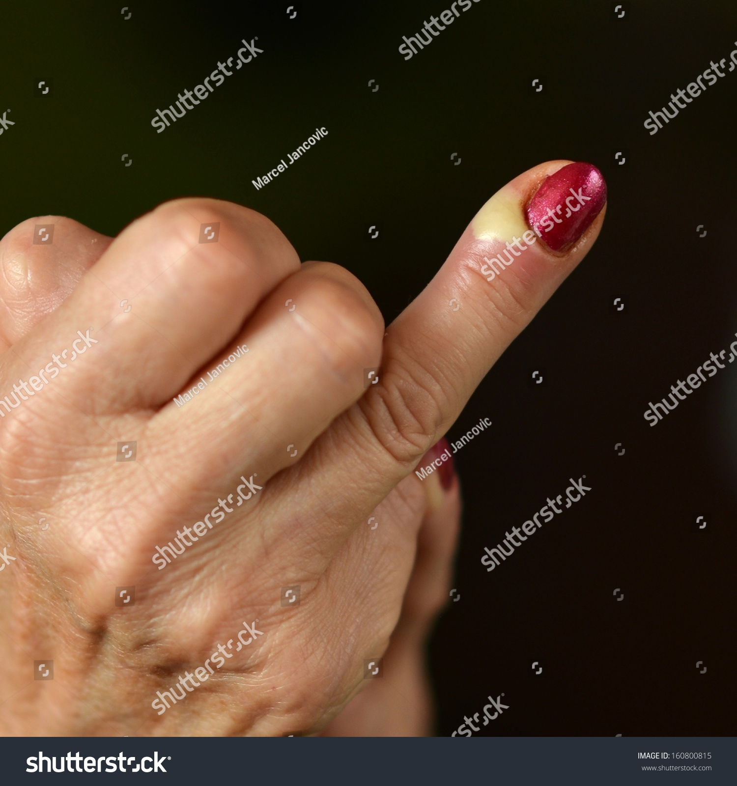 Pus Finger Stock Photo (Royalty Free) 160800815 - Shutterstock