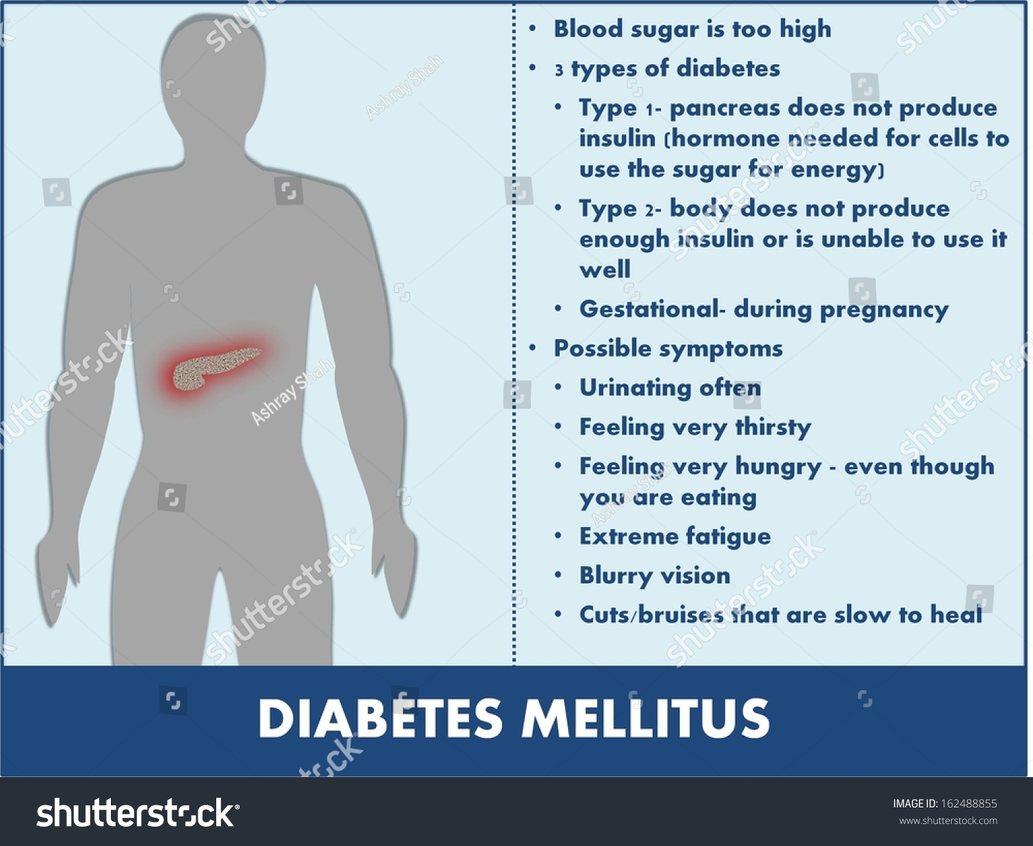 a look at the disease diabetes mellitus Type 1 diabetes mellitus is a metabolic disease characterized by protein elements of the pathogen 'look like' elements of sciencedirect ® is a.