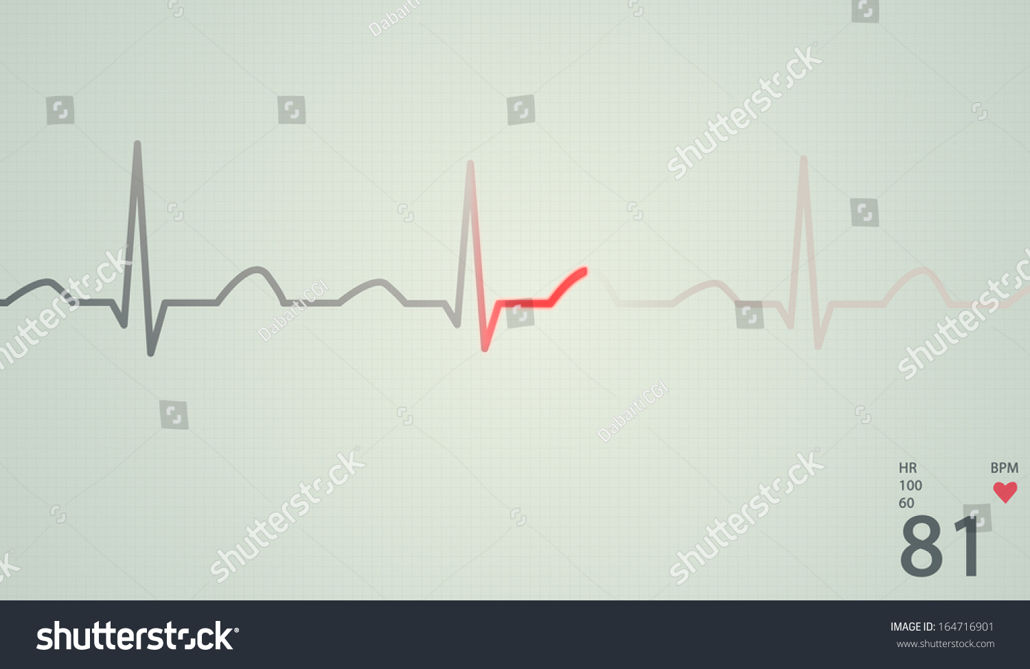 Schematic Diagram Normal Sinus Rhythm Human Stock Illustration Ecg Circuit Of For A Heart As Seen On Red