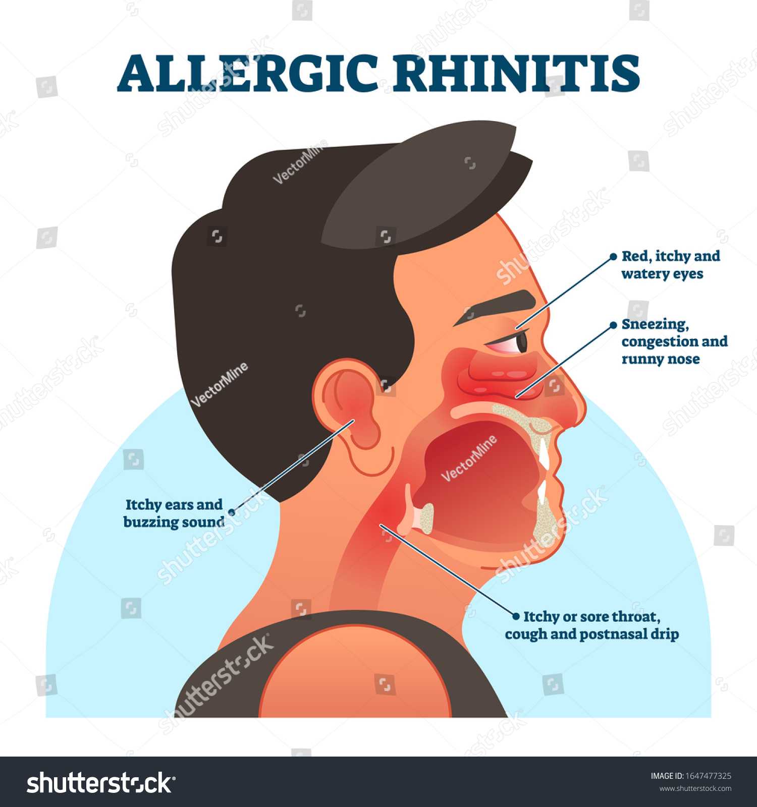 Sore Throat Runny Nose And Red Eyes Manual Guide
