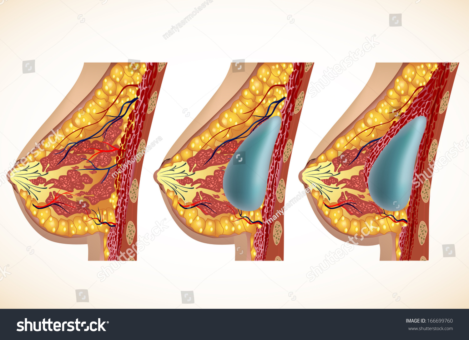 Anatomy Breast Implants Stock Illustration 166699760 - Shutterstock