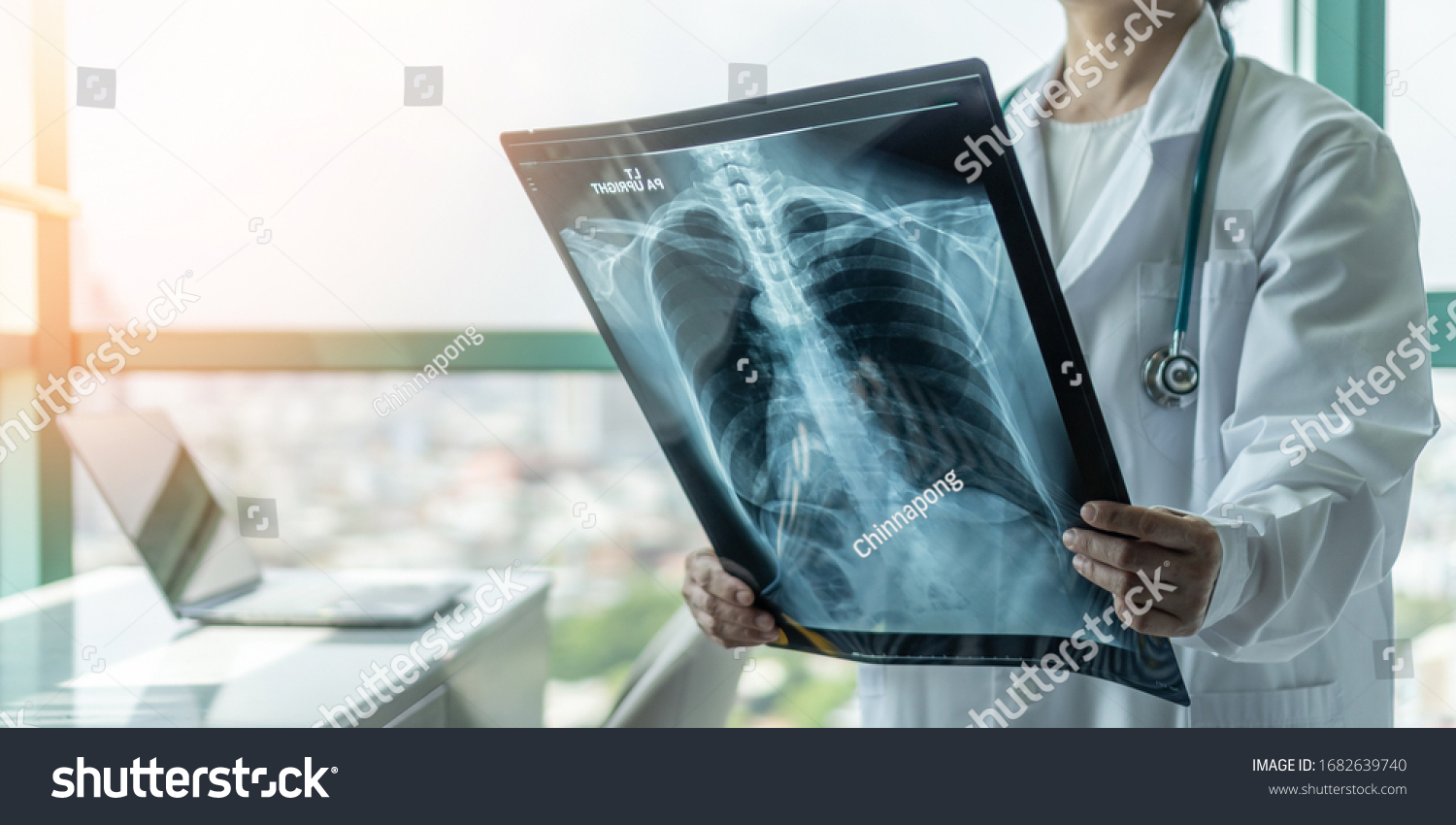 Doctor diagnosing patient's health on asthma, lung disease, COVID-19, coronavirus or bone cancer illness with radiological chest x-ray film for medical healthcare hospital service