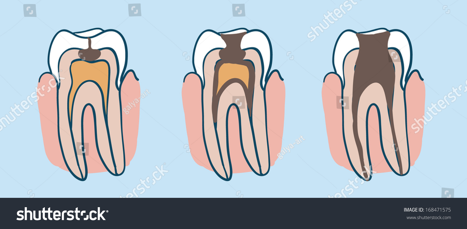 Diagram of tooth decay process auto electrical wiring diagram process tooth decay diagram tooth caries stock vector 168471575 rh shutterstock com tooth diagram with names tooth anatomy diagram ccuart Image collections