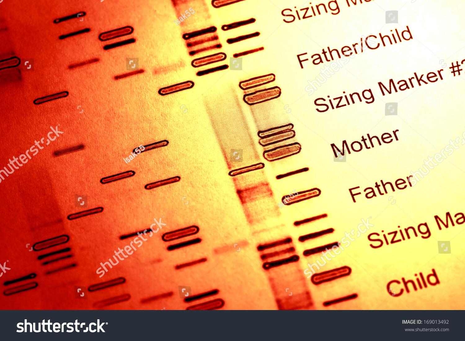 serious problems with dna fingerprinting essay The term dna fingerprinting - or genetic fingerprinting - is applied to the scientific process whereby samples of dna are collected, collated and used to match other.