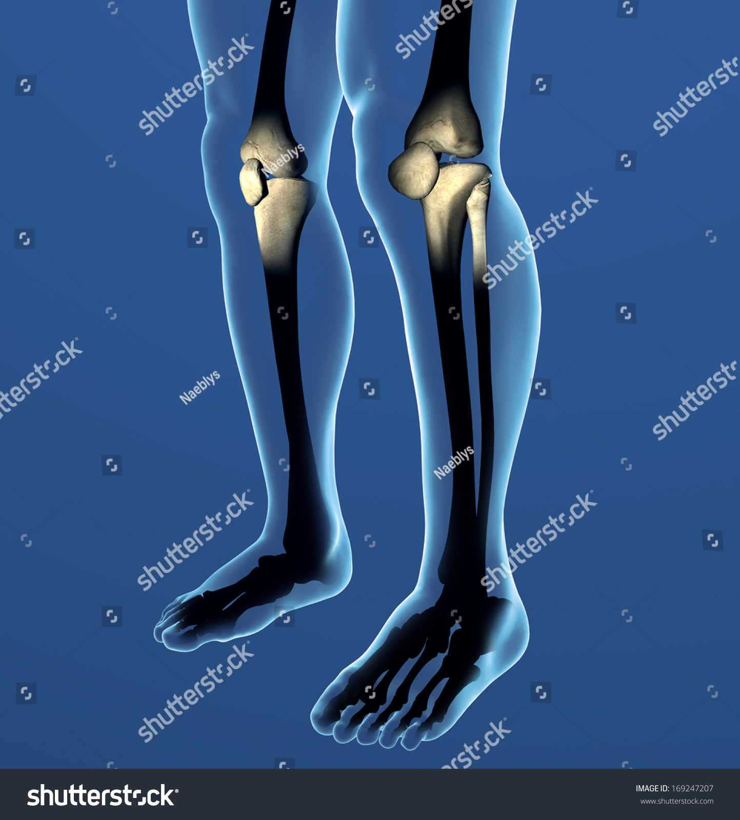 Knee Xray Pain Human Body Anatomy Stock Illustration 169247207 ...