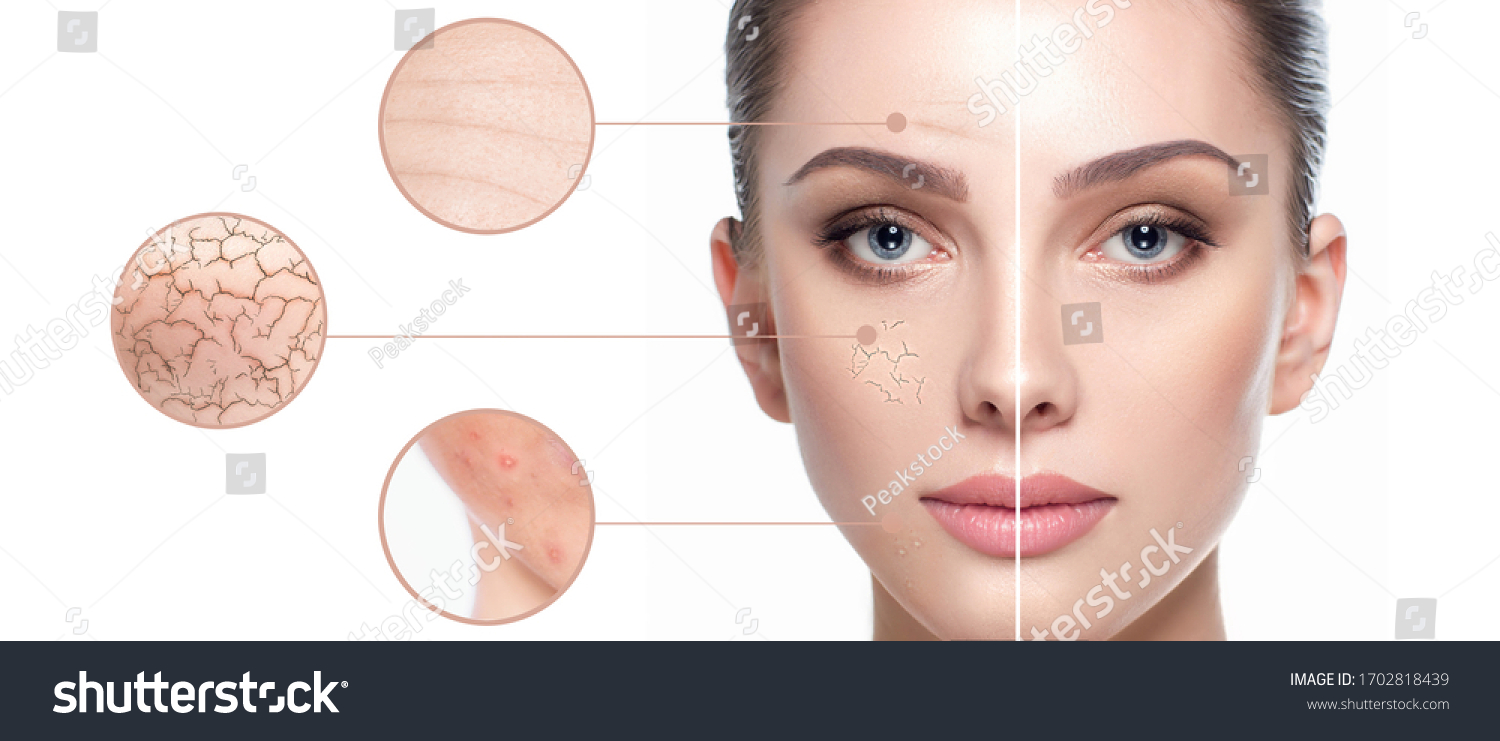 Female face close-up, showing skin problems. Dry skin, acne, wrinkles and other imperfections. Rejuvenation, hydration and skin treatment #1702818439