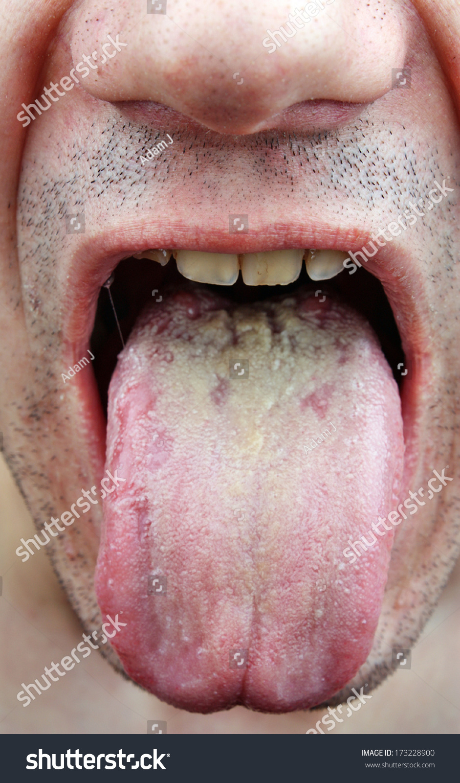 disease infection tongue throat man stock photo 173228900