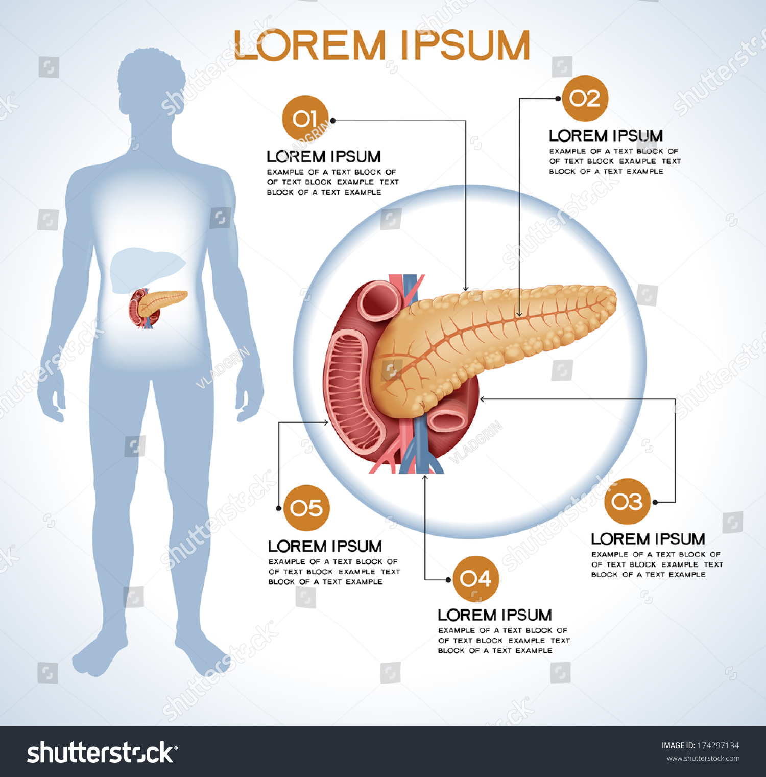 Pancreas Modern Medical Infographics Internal Organs Stock Vector