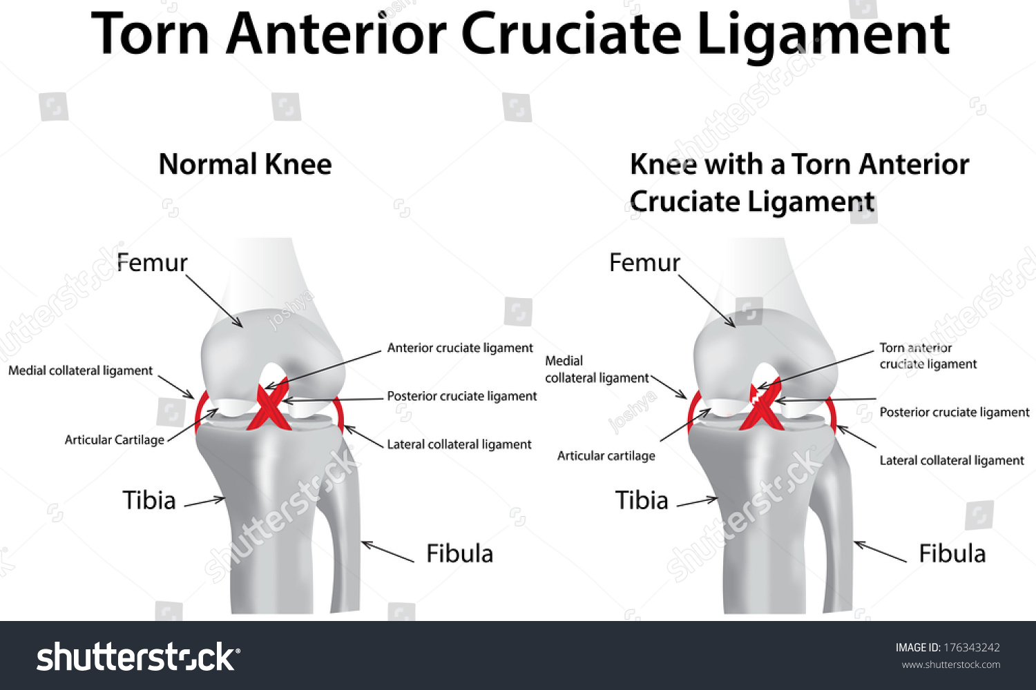 left anterior cruciate ligament tear Surgical treatment of an acl tear involves reconstructing the ligament to restore  stability of the  the anchoring devices utilized are left in on a permanent basis.