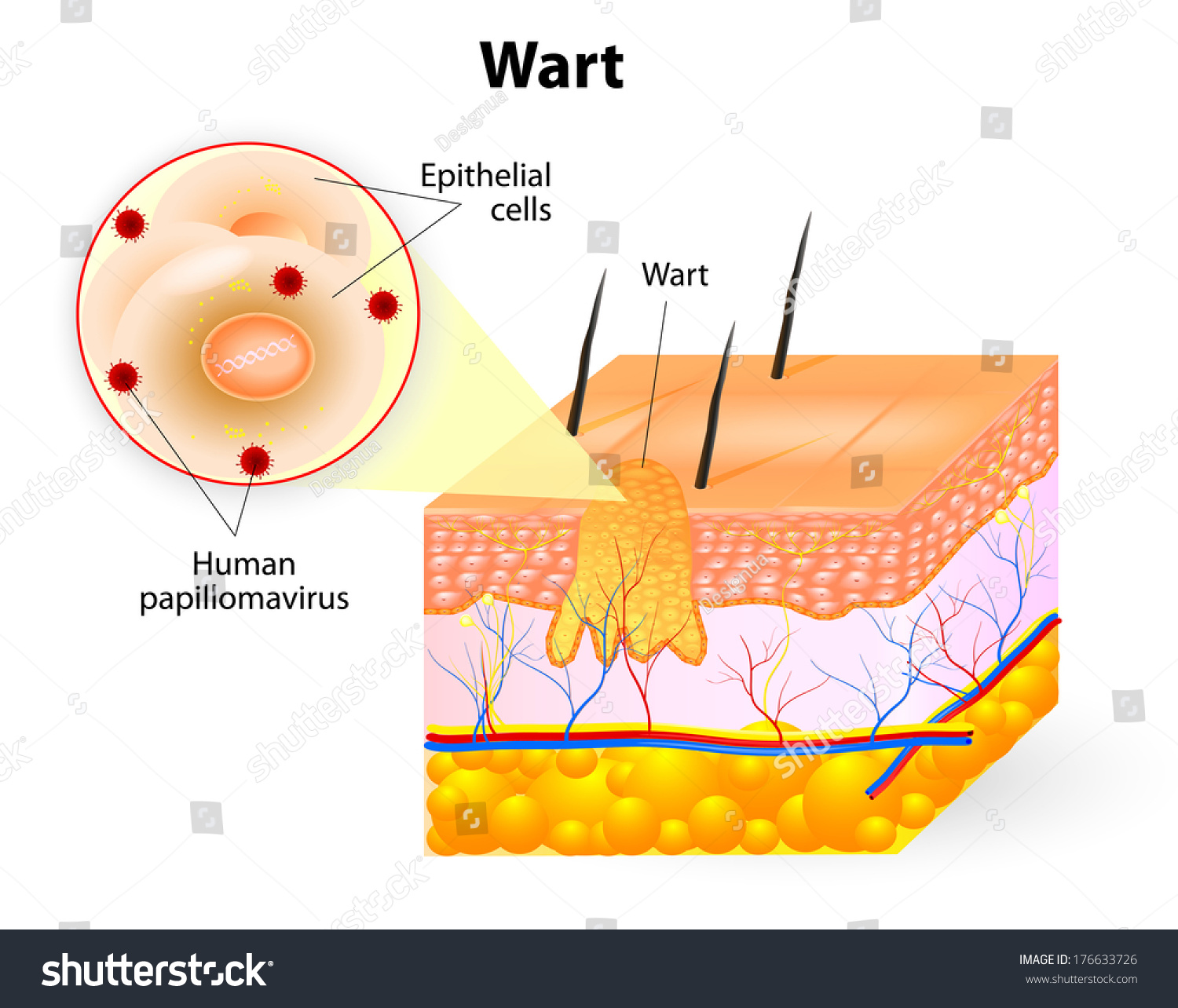 Anatomy Wart Stock Illustration 176633726 Shutterstock