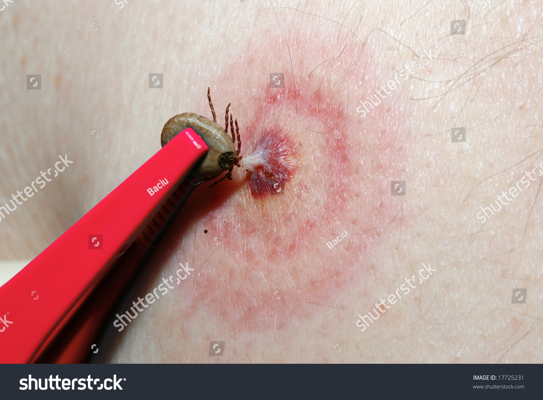 tick on skin stock photo 17725231 shutterstock