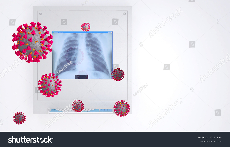 stock-photo-lung-x-ray-film-with-coronav