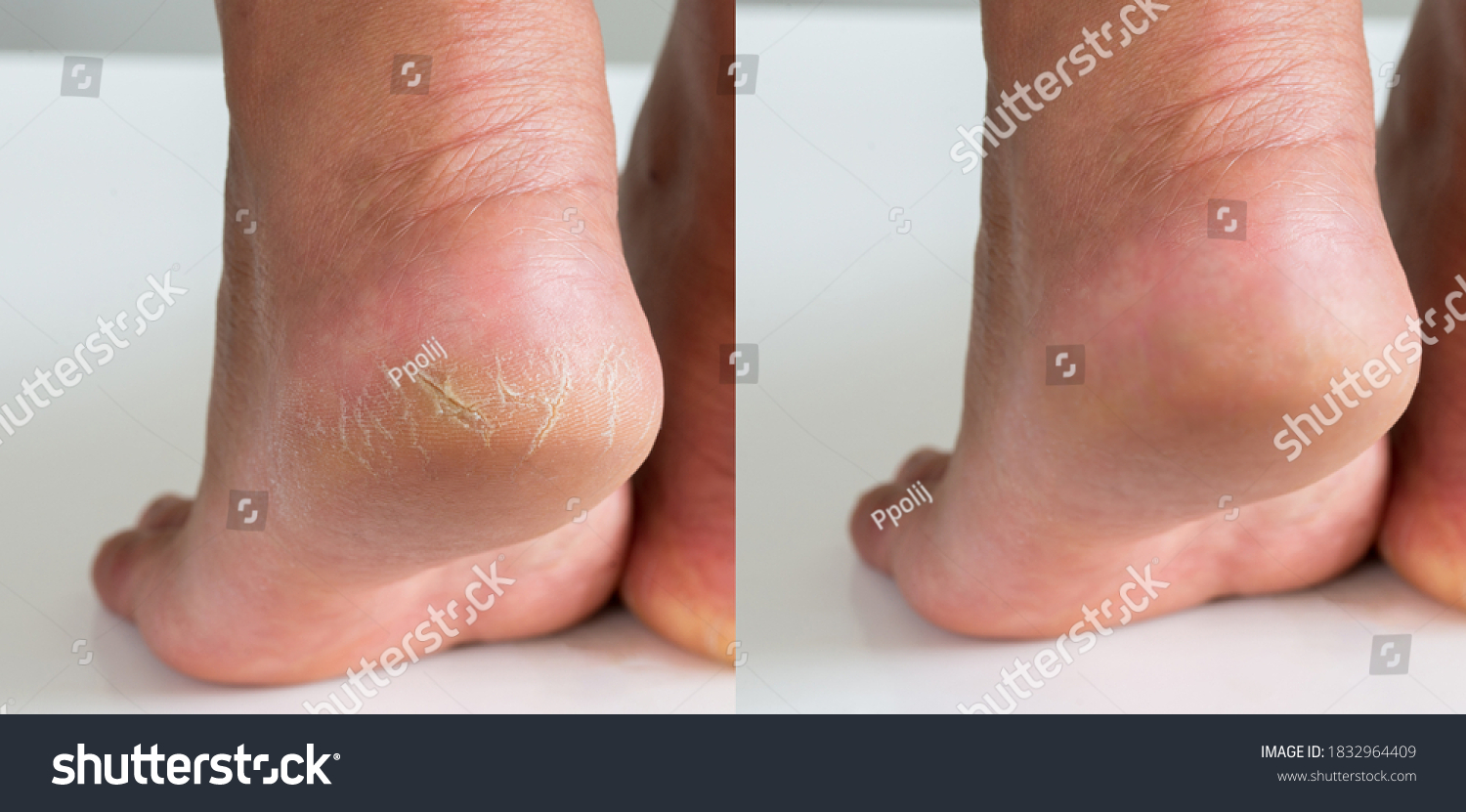 Image before and after treatment of dry heels cracks skin dehydrated skin on heels of female feet. #1832964409