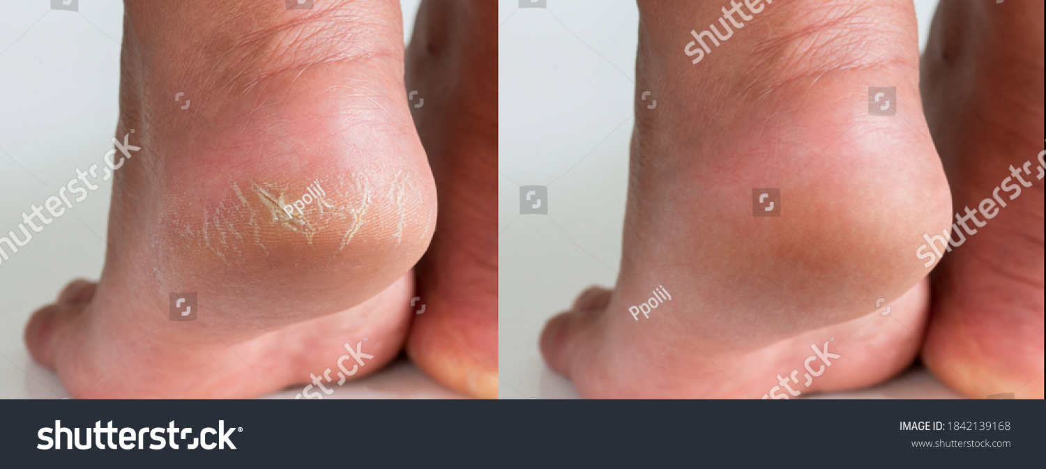 Image before and after treatment of dry heels cracks skin dehydrated skin on heels of female feet. #1842139168
