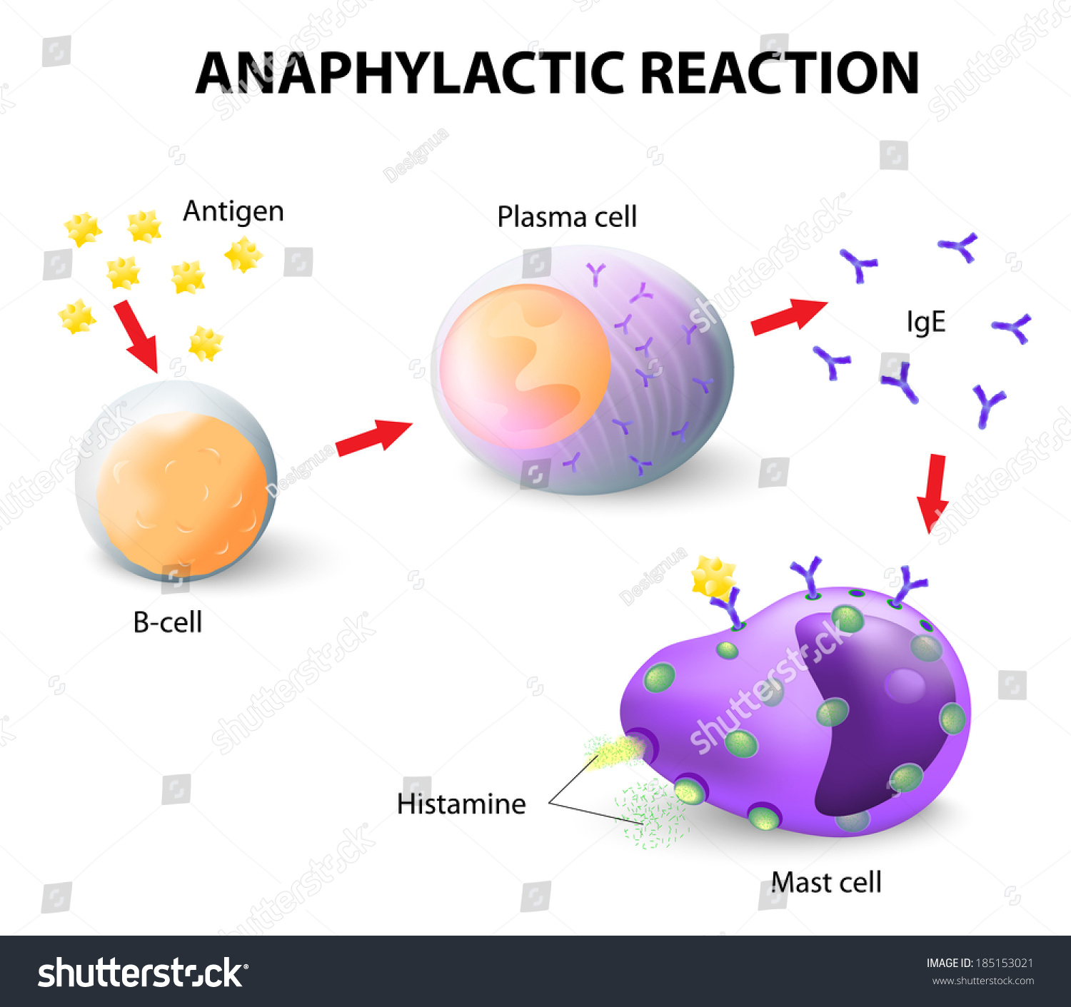 an allergy is a hypersensitive disorder Hypersensitivity is a hypernym of allergy as nouns the difference between hypersensitivity and allergy is that hypersensitivity is any heightened immune response to.