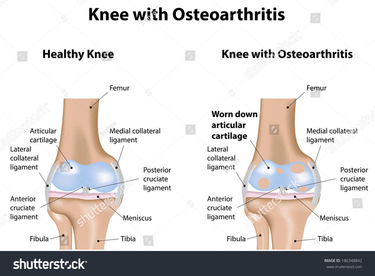 Diagram Of Knee Joint | Knee Joint Osteoarthritis Arthritis Diagram Stock Vektorgrafik