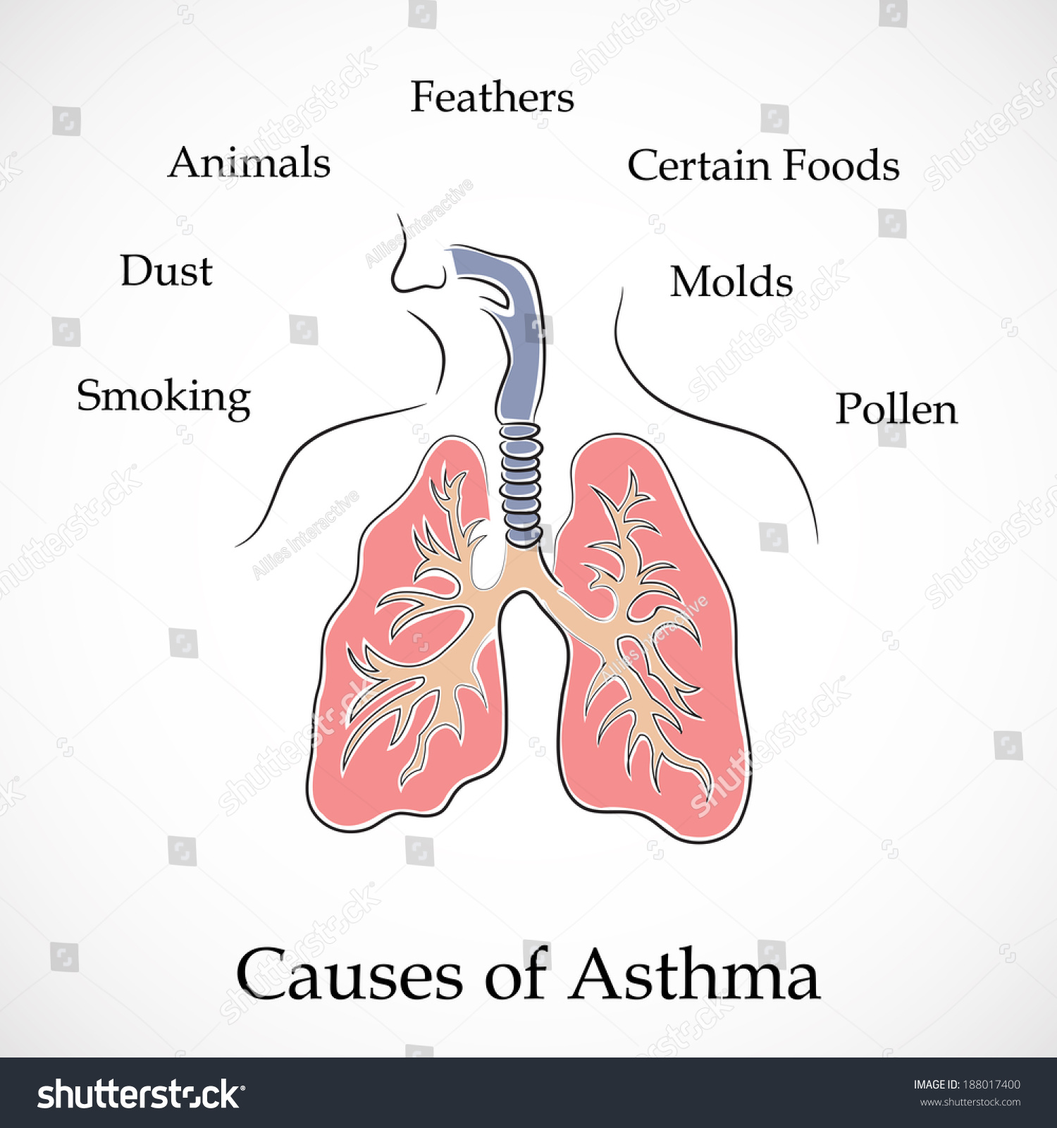 Illustration human lungs causes asthma on stock vector 188017400 illustration of human lungs and causes of asthma on grey background ccuart Gallery