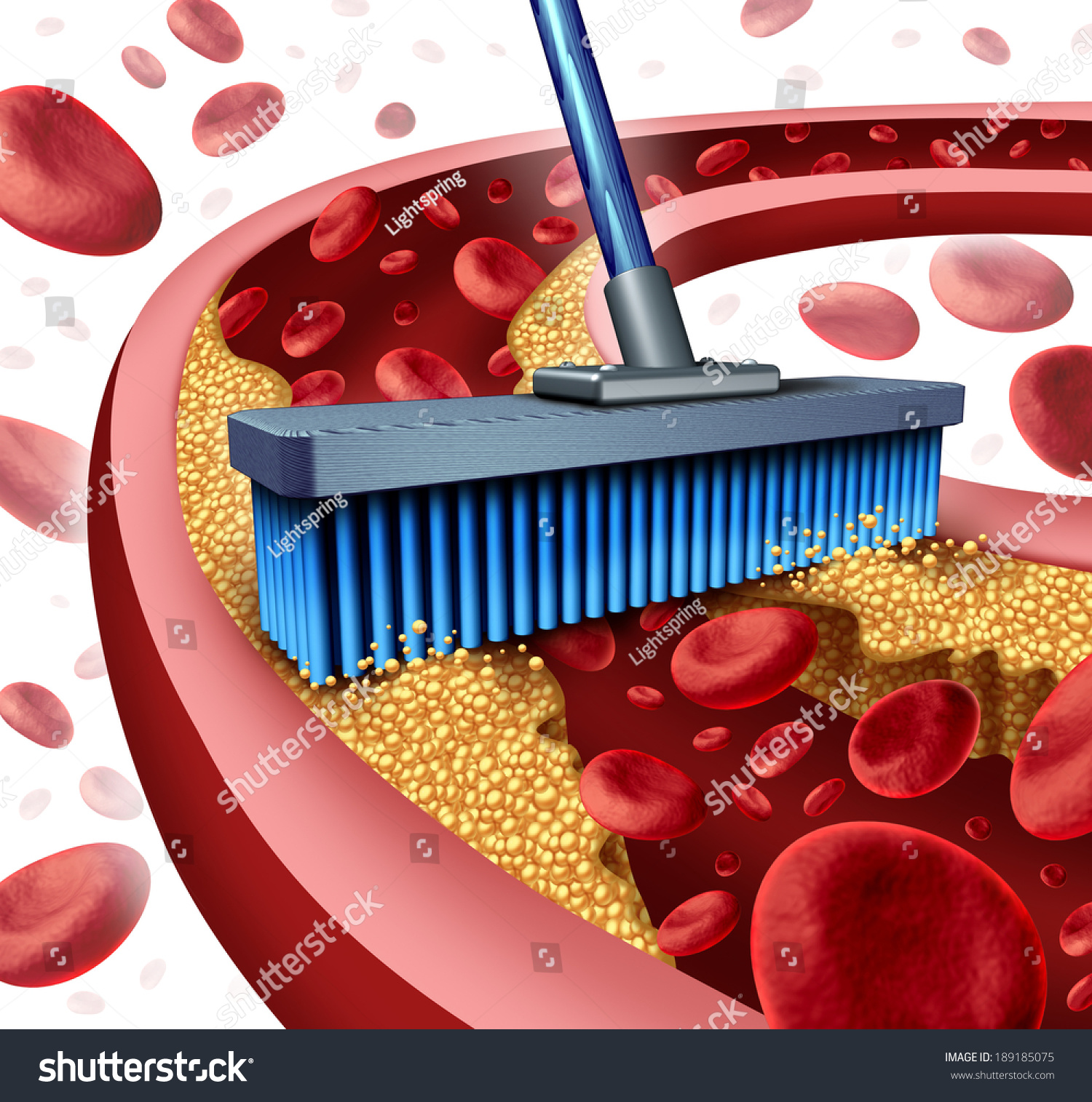 how to clean clogged arteries and blood vessels naturally