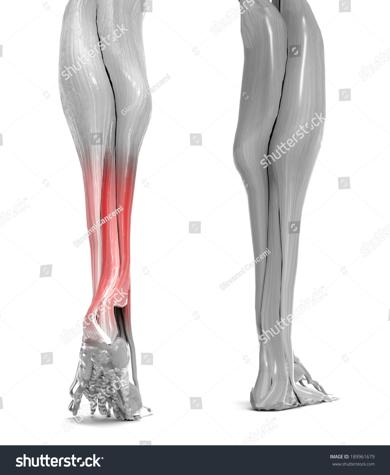 Achilles Tendon Lower Leg Muscles Stock Illustration 189961679 ...