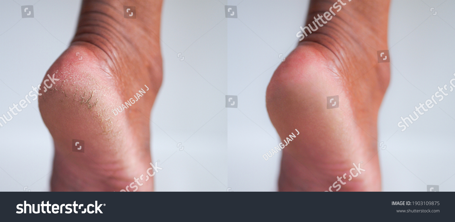 Image before and after cracked heel skin of foot treatment concept.  #1903109875