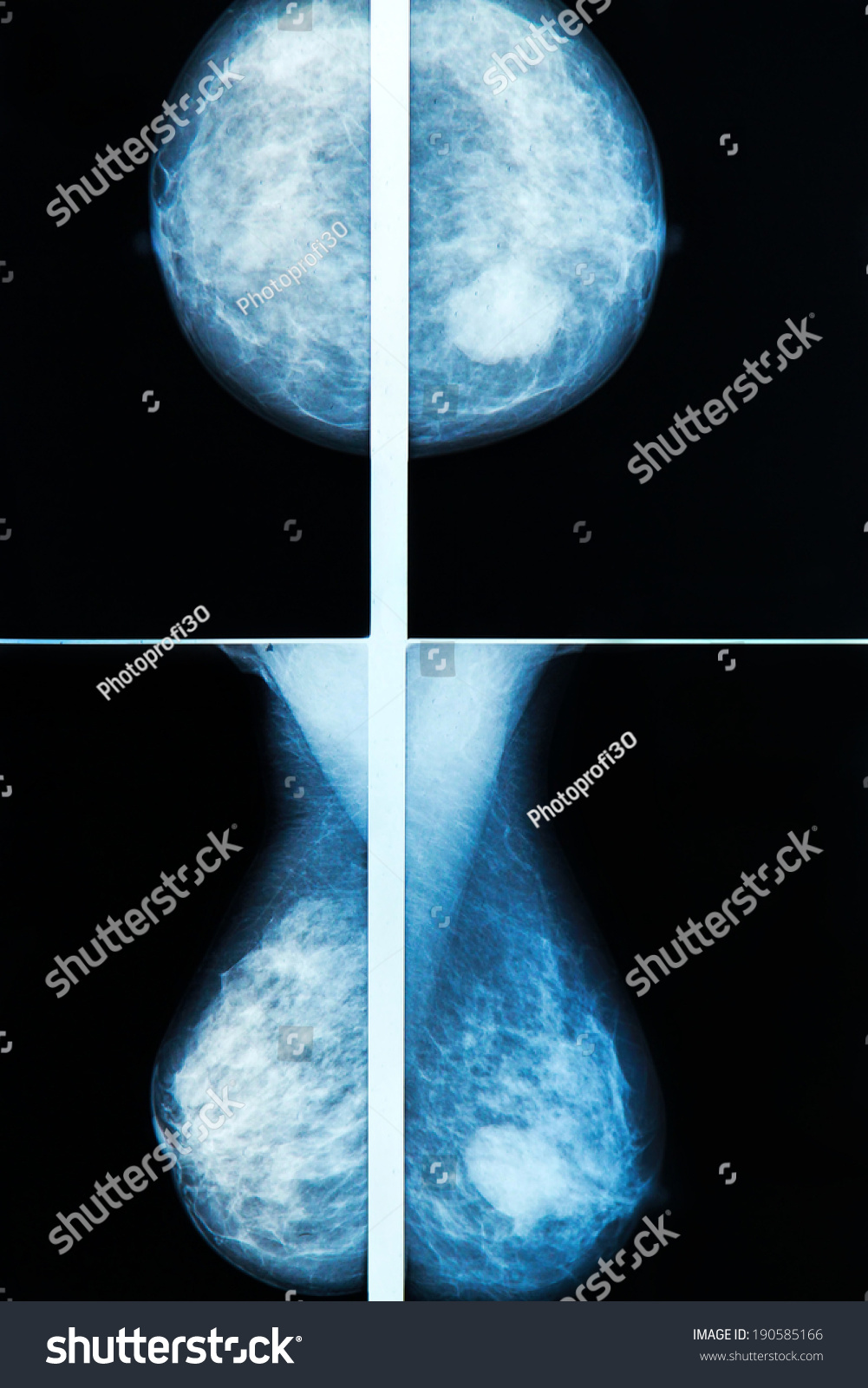 tomosynthesis mammography video