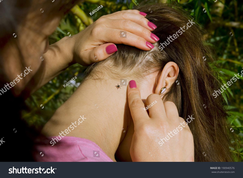 Что делать если девушка укусила за член 6 фотография