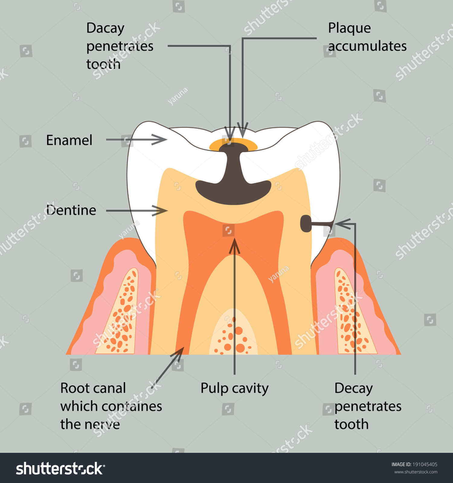 Decay Tooth  Stock Vector Illustration 191045405