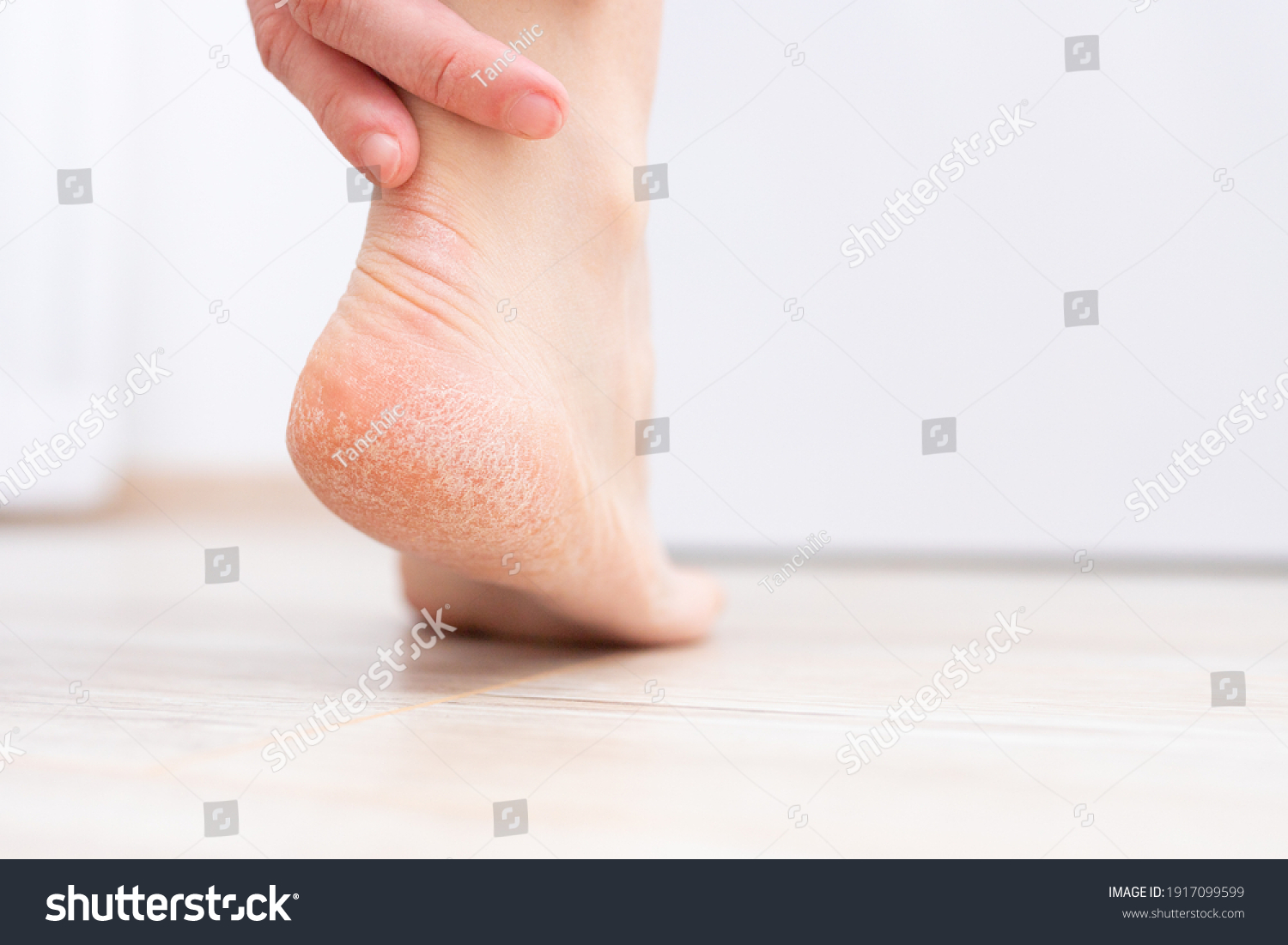 The dry skin on the heel is cracked. Treatment concept with moisturizing creams and exfoliation for healing wounds and pain when walking. Dehydrated skin on the heels of female feet #1917099599