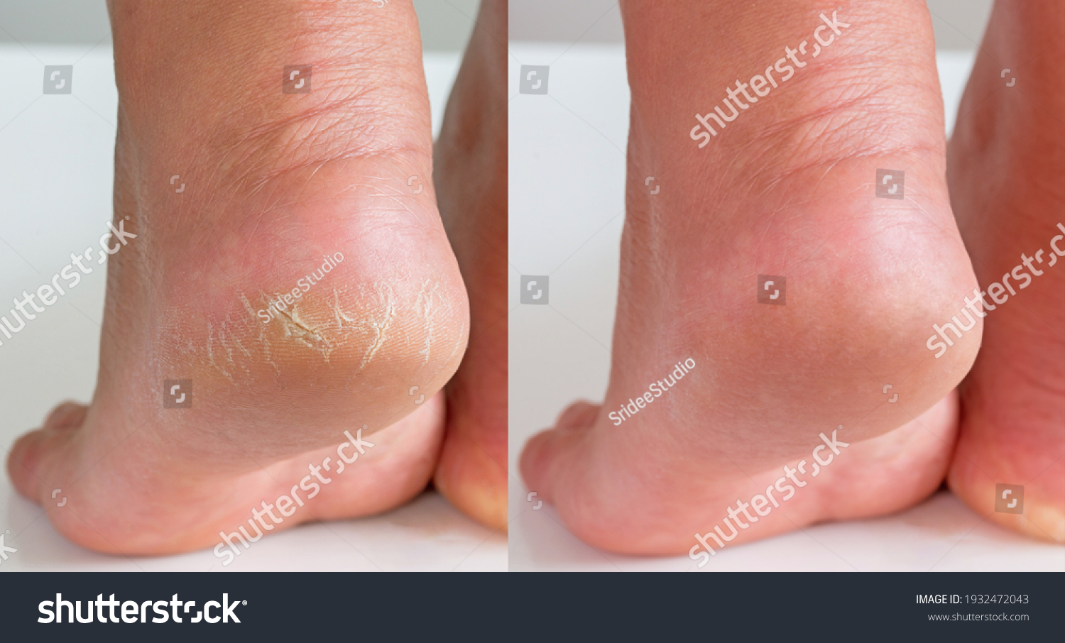 Image before and after treatment of dry heels cracks skin dehydrated skin on heels of female feet. #1932472043