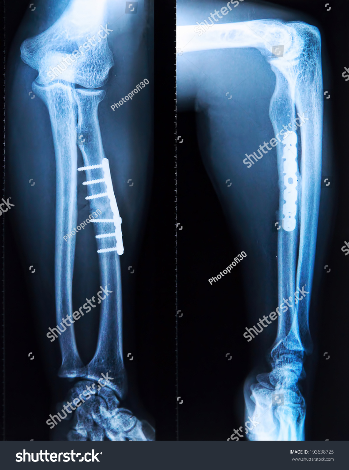 Xray Broken Tibia Screw Fixation Surgery Stock Photo (Royalty Free ...