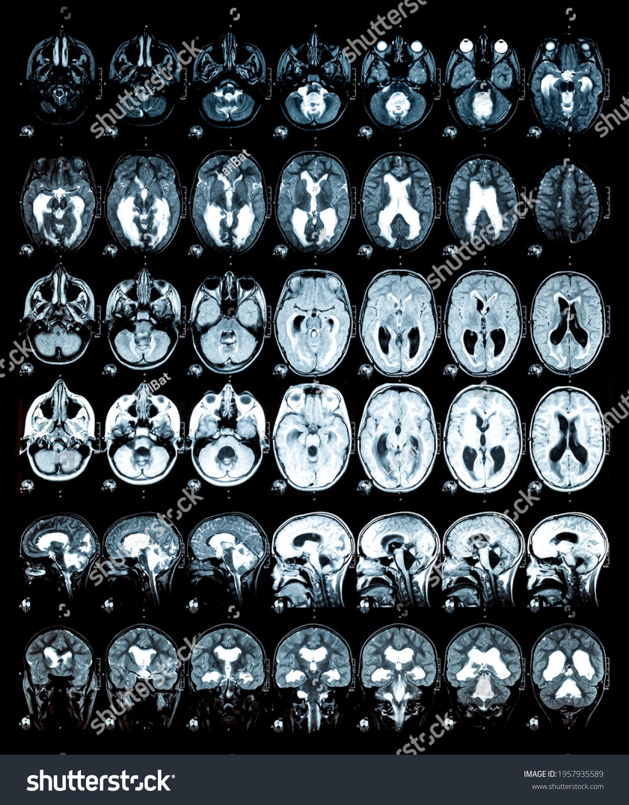 Real MRI scans of the head and brain. Magnetic resonance image scan of the brain showed obstructive triventricular hydrocephalus. Background on theme of science, medicine, neurology. #1957935589