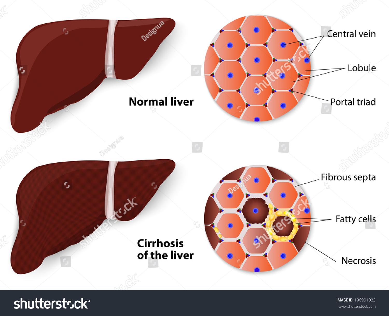 Cirrhosis Liver Normal Liver Structure Liver Stock Vector Royalty