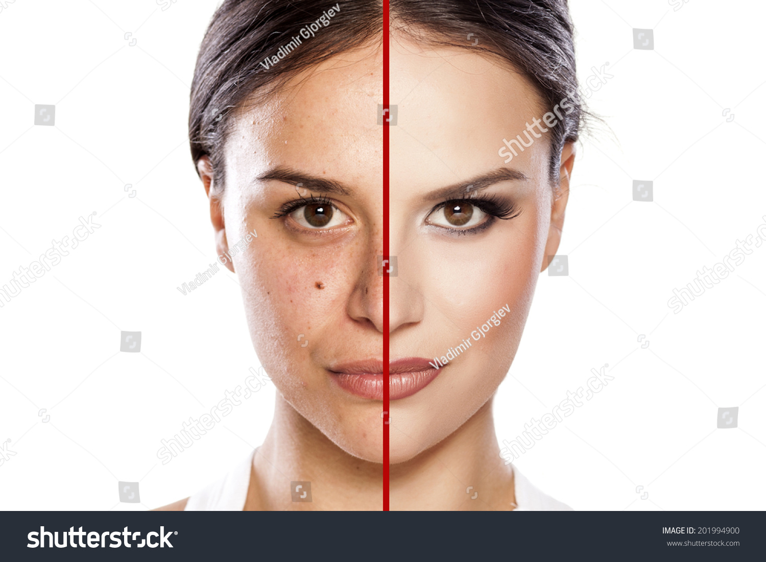 Comparison Portrait Girl Without Makeup Stock Photo 201994900 - Shutterstock