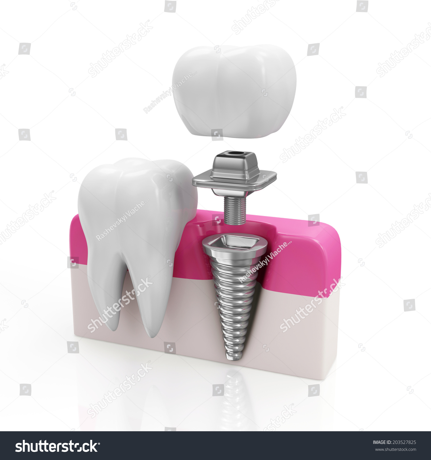 Dentistry Concept. Health Tooth And Dental Implant ... Dental Implant Background