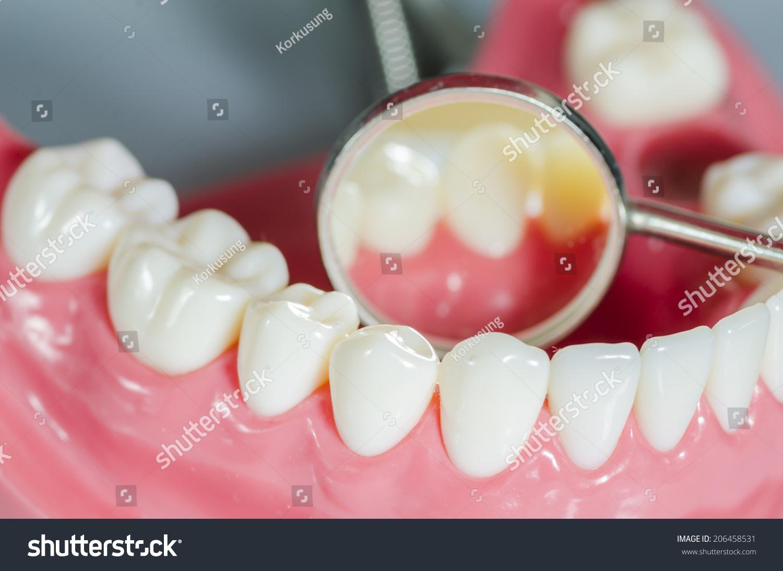 Зубные импланты при беременности