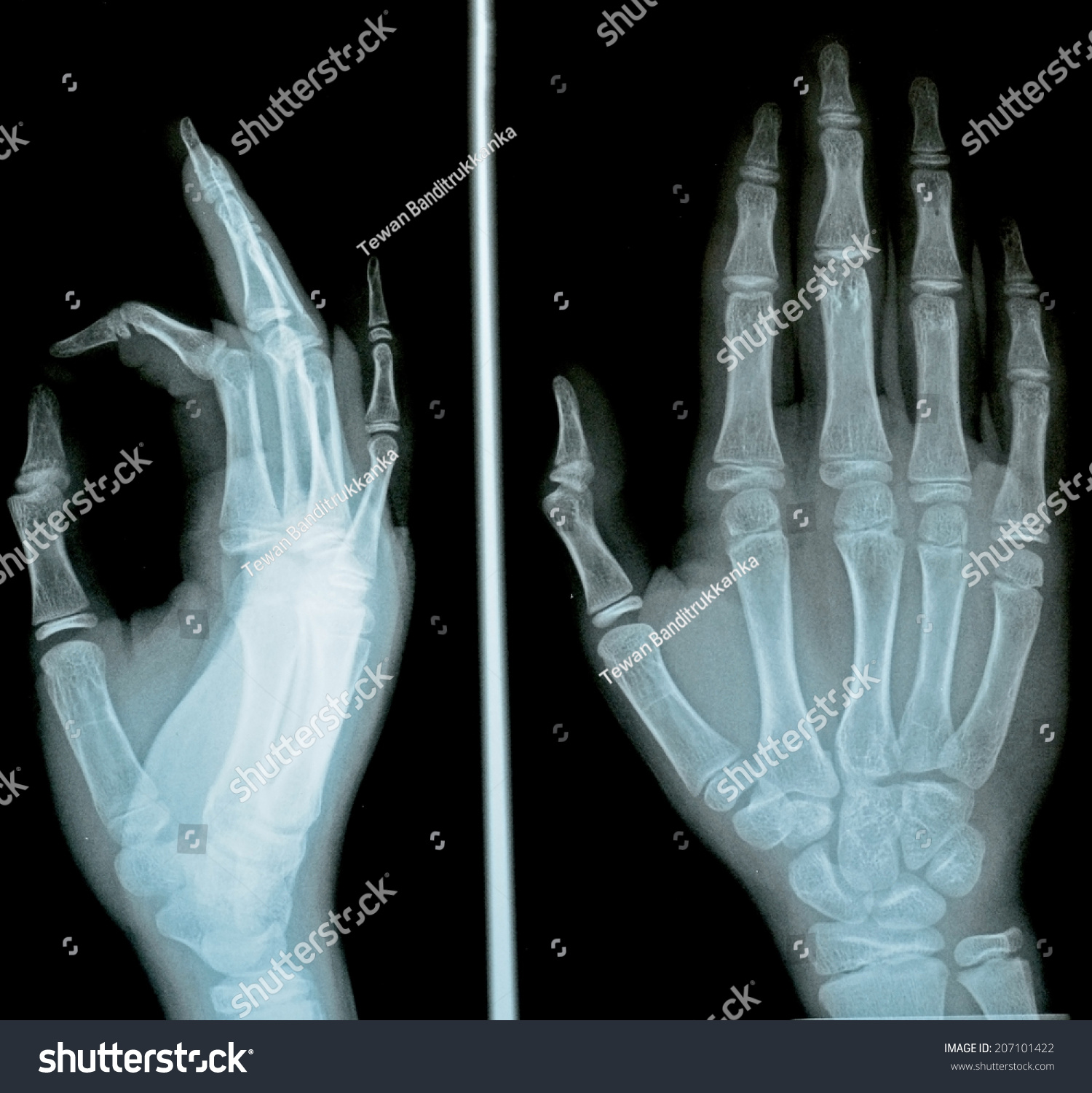 Film Xray Hand AP Lateral Stock Photo (Download Now) 207101422 ...