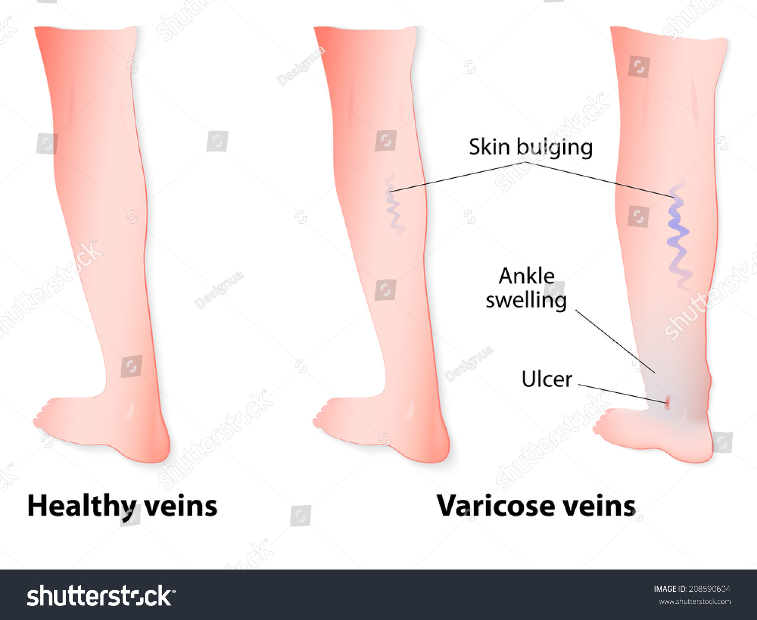 varicose veins twisted enlarged veins blue stock vector ... varicose ulcer diagram cheek ulcer diagram #4