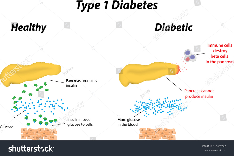 Type 1 Diabetes Diagram
