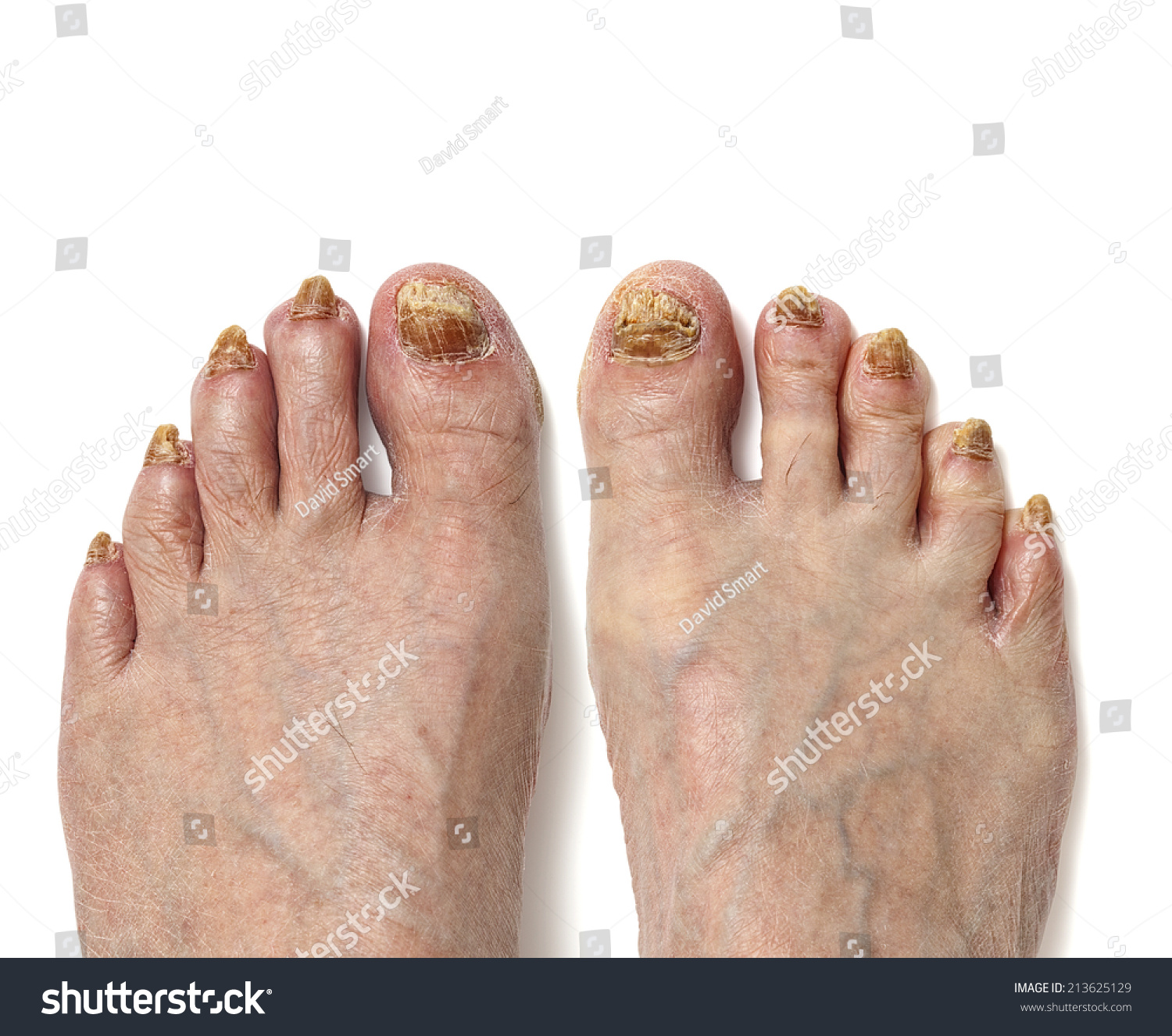 Fungal Toenail Infection Readily Apparent On Stock Photo (Download ...