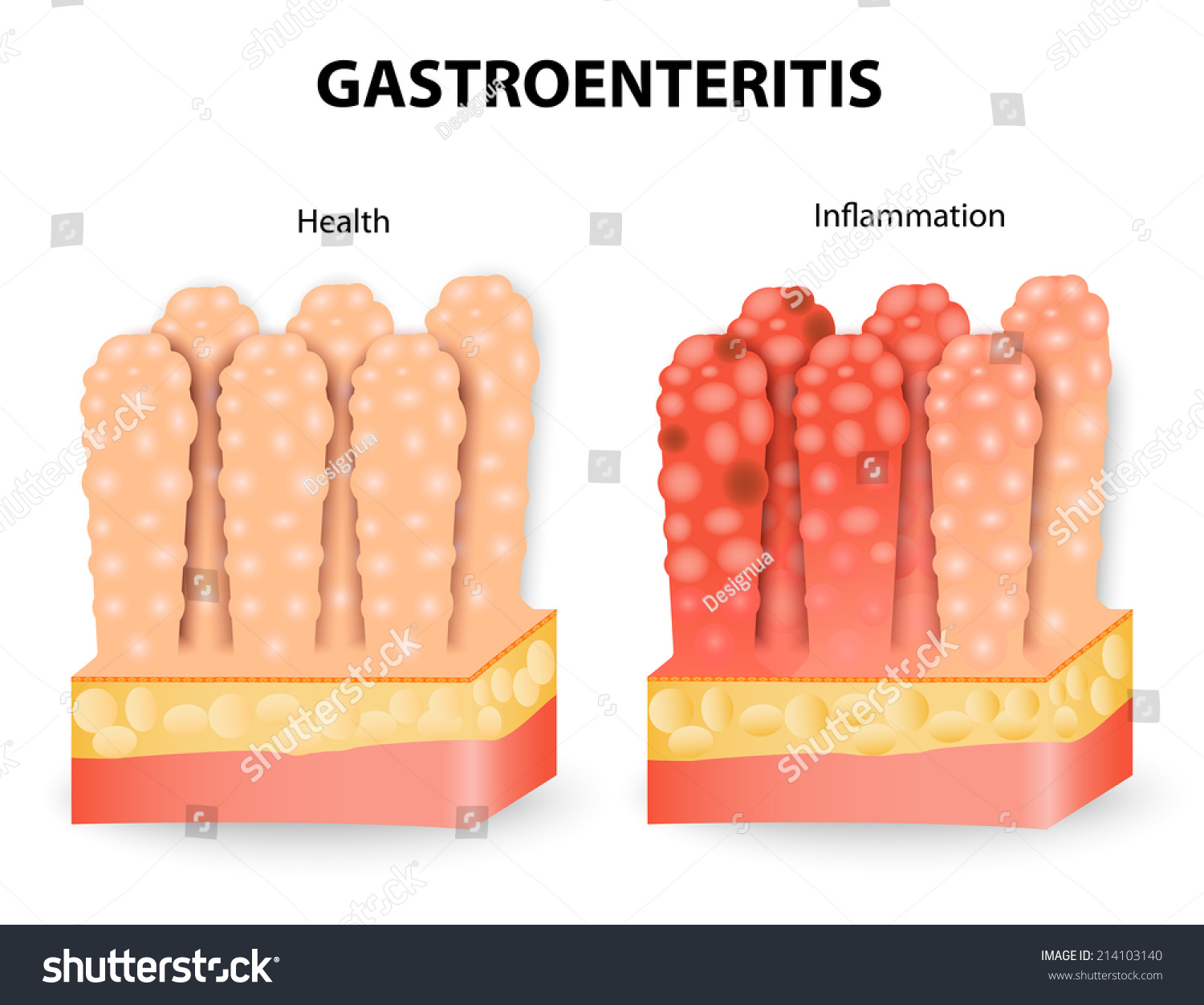 Gastroenteritis Infection
