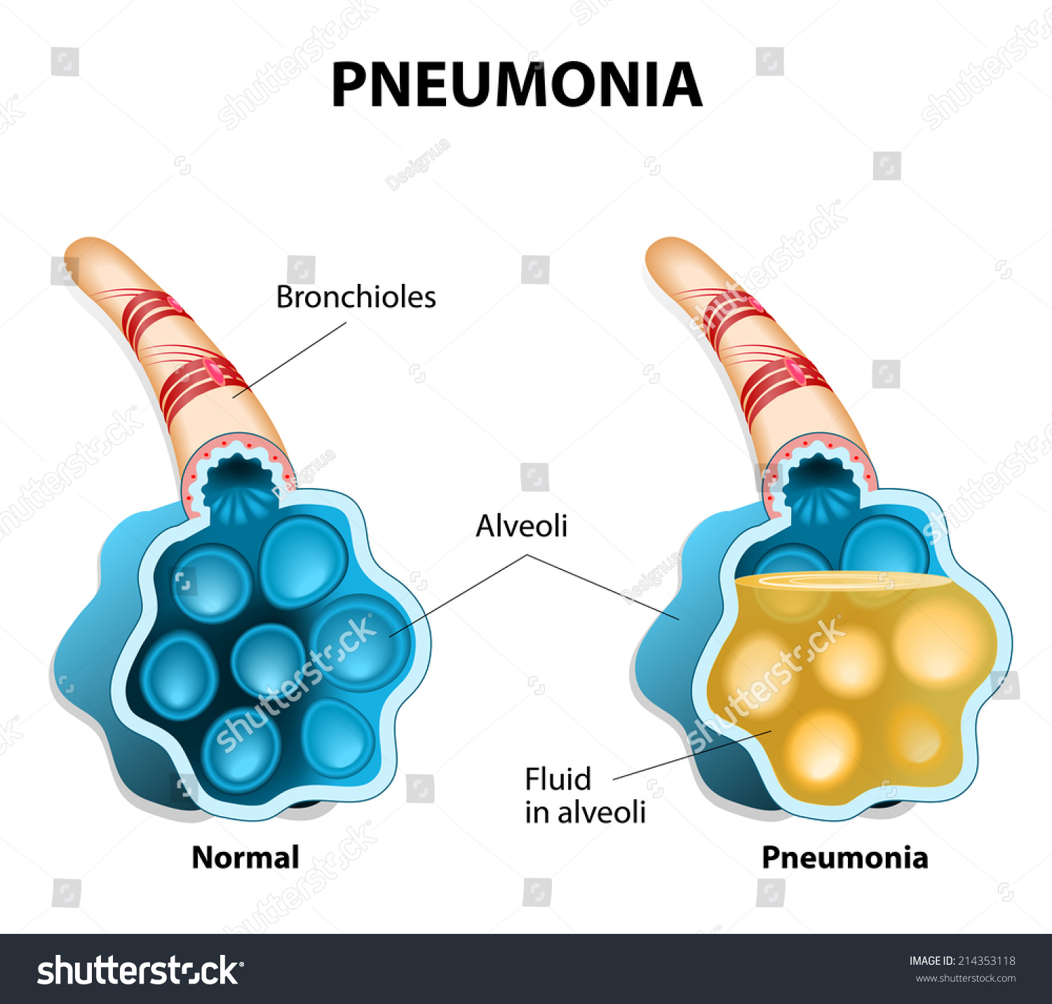 Pneumonia Illustration Shows Normal And Infected Alveoli. Pci Scanning Requirements 24 Hour Fax Service. Visa Credit Card Information. Business Management Services. Dallas Cosmetology Schools Suicide Self Harm. Nyc Moving And Storage Colleges In Sw Florida. Master Of Business Administration. Charter Communications Wausau. Abbott Healthcare Products Rn Nurse Programs