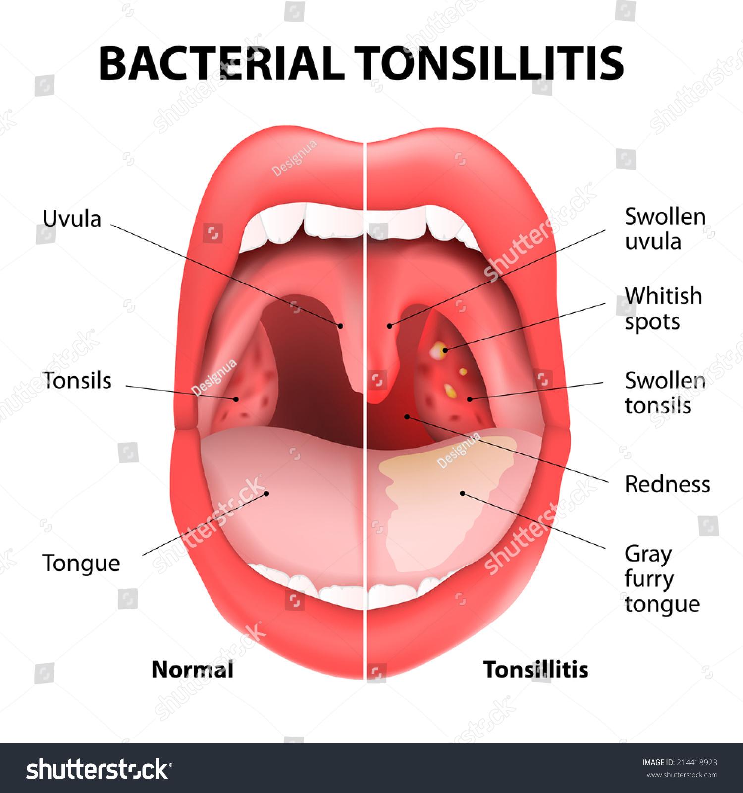 Bacterium strep throat