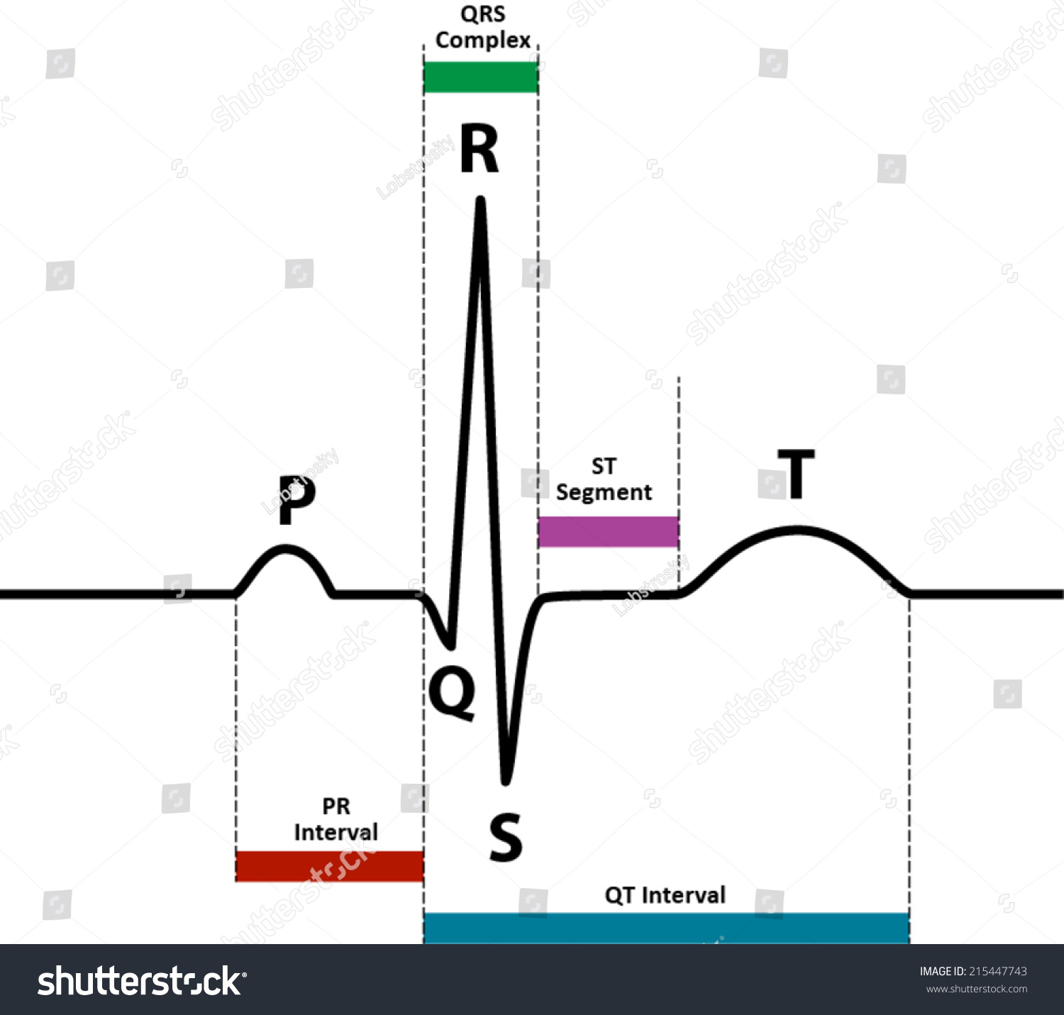Ecg Ekg Normal Sinus Rhythm Wave Stock Vector 215447743