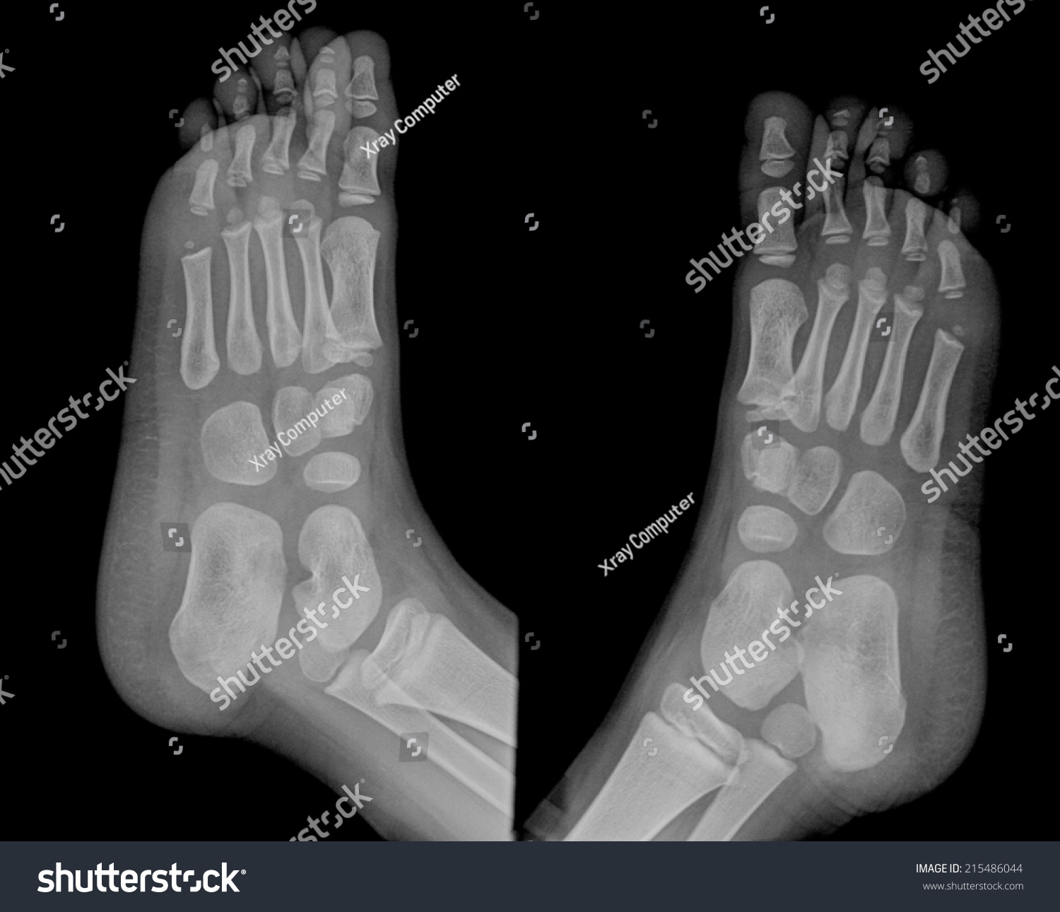 Film X-Ray Foot ...Xray Of Childs Foot