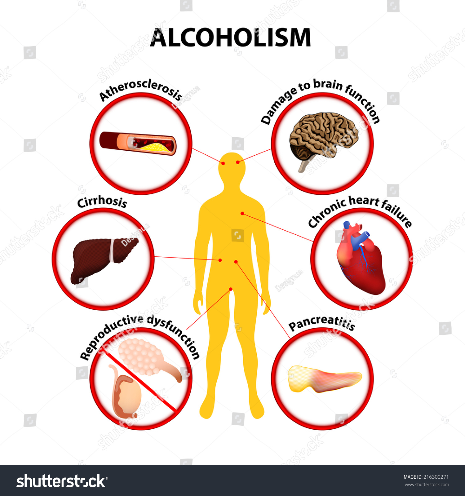 the effect of music on alcohol consumption 29012012 from liver international the effect of caffeine and alcohol consumption on liver fibrosis a study of 1045 asian hepatitis b patients using transient.