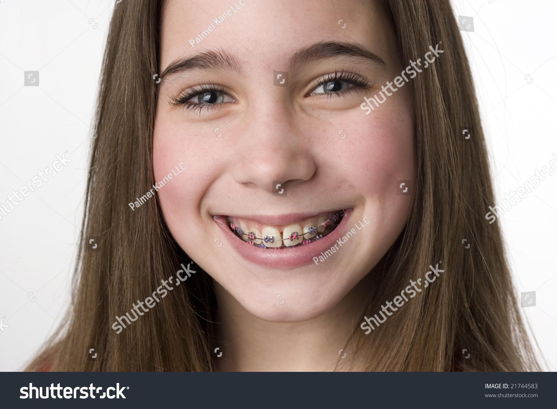 Young teen girls braces facial entertaining phrase
